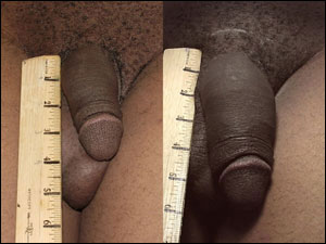ExtenZe penis enlargement before and after photo 2